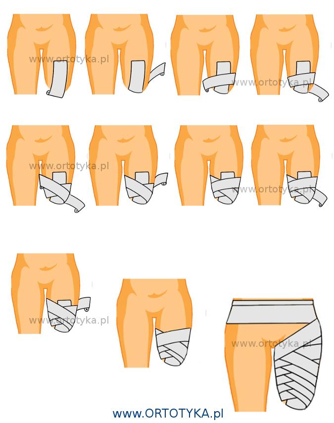 kikut_amputacja_uda_kolanem_podudzie_podudzia_bandażowanie_ototyka_protezownia_warszawa_proteza_nogi