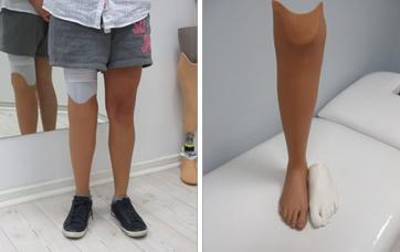 proteza podudzia pokrycie